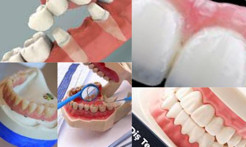 Protetik Diş Tedavisi Nedir