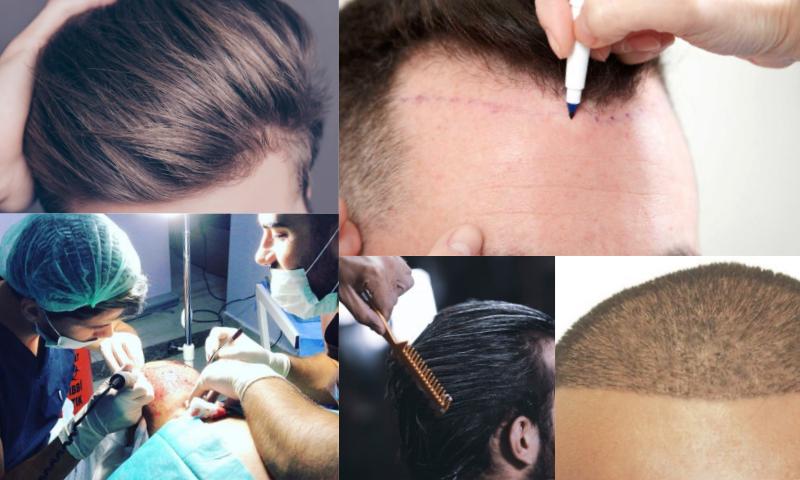 Saç Ekiminde Doktor Seçimi